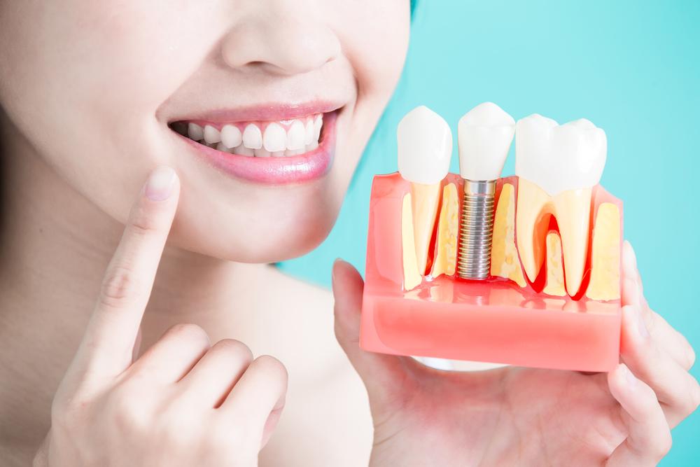 Sfaturi pentru ingrijirea implanturilor dentare